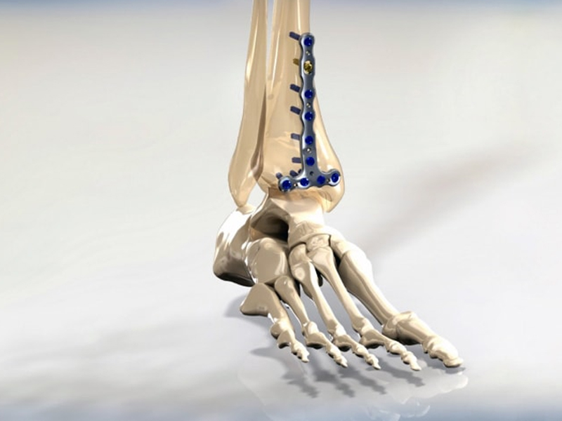 Locking Distal Tibia Anterior Malleol Plate
